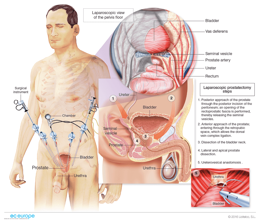 Surgery Medical Illustration Ec Europe