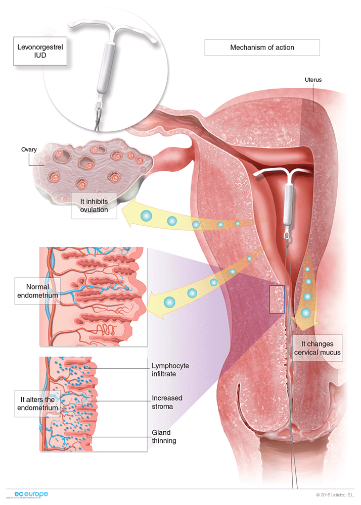 Gynaecology  Medical illustration  eceurope