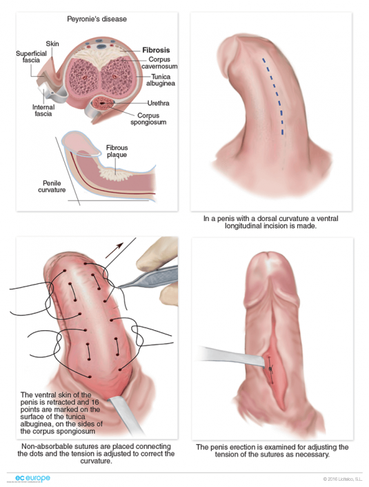 Ultrasound evaluation of the penis