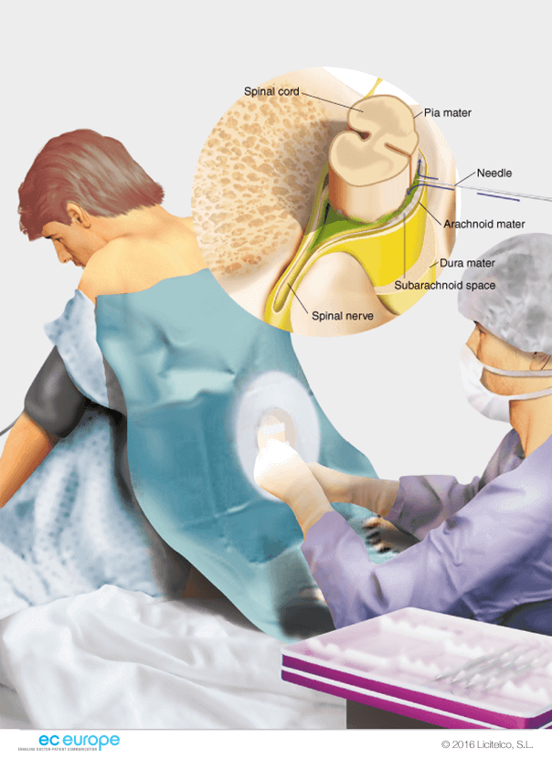 anaesthesiology - medical illustration