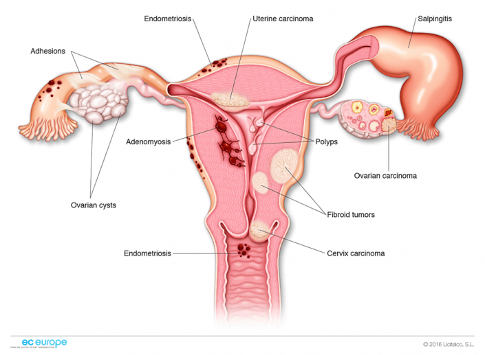 How To Make Sex Less Painful If You Have Endometriosis