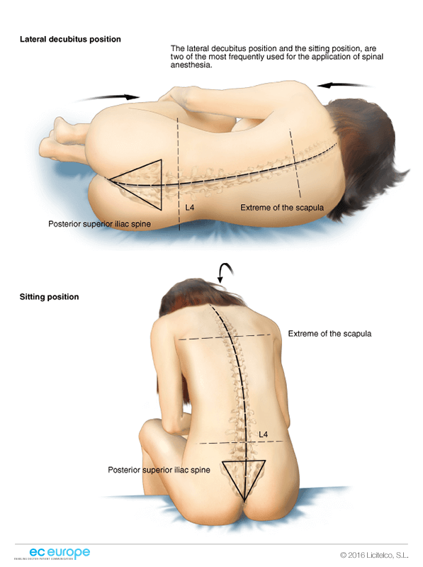 REVIEW ARTICLE – The causes, prevention and management of post spinal backache: an overview
